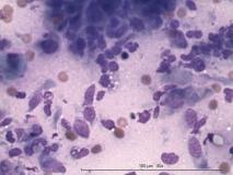 Акантоматозная амелобластома у собаки породы кокер-спаниель. Цитология. Рис. 3