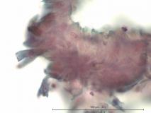 Акантоматозная амелобластома у собаки породы кокер-спаниель. Жидкостная цитология. Рис. 6