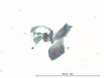 Акантоматозная амелобластома у собаки породы кокер-спаниель. Жидкостная цитология. Рис. 8
