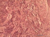 Акантоматозная амелобластома у собаки породы кокер-спаниель. Гистология. Рис. 9