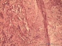 Акантоматозная амелобластома у собаки породы кокер-спаниель. Гистология. Рис. 11