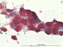 Атипичный микобактериоз у собаки породы цвергшнауцер. Жидкостная цитология. Окраска по Цилю-Нильсену. Рис. 13