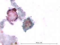 Цилиарная аденома задней камеры глаза у собаки породы лабрадор. Жидкостная цитология. Рис. 25