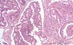 Дуктальная карцинома поджелудочной железы у кошки. Гистология. Рис. 12.