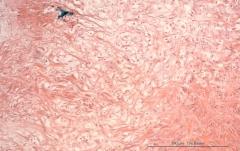 Хондросаркома молочной железы у собаки породы ши-тцу. Гистология. Рис. 5