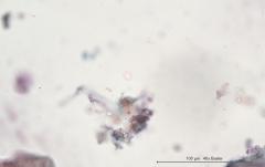 Хондросаркома молочной железы у собаки породы ши-тцу. Жидкостная цитология. Рис. 10