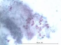Иридоцилиарная аденома глаза у кролика. Жидкостная цитология. Рис. 11