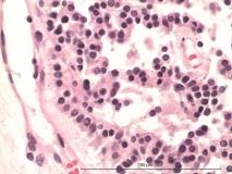 Иридоцилиарная аденома глаза у кролика. Гистология. Рис. 22