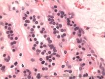 Иридоцилиарная аденома глаза у кролика. Гистология. Рис. 24