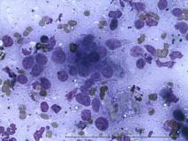 2-хкомпонентная опухоль у кошки сибирской породы. Рис. 8.