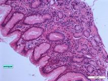 05 - Хронический дуоденит и гастрит у кошки породы сфинкс. Антральный отдел желудка. Гистология. Окраска гематоксилин-эозином.