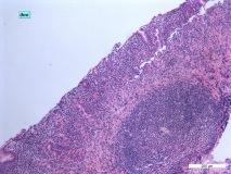 06 - Хронический дуоденит и гастрит у кошки породы сфинкс. Дно желудка. Гистология. Окраска гематоксилин-эозином.
