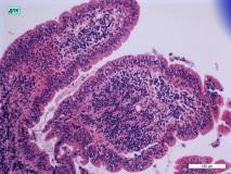 07 - Хронический дуоденит и гастрит у кошки породы сфинкс. Двенадцатиперстная кишка. Гистология. Окраска гематоксилин-эозином.