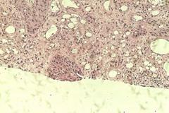 01 - Инфильтративная карцинома почечной лоханки с плоскоклеточной метаплазией у кошки породы петерболд.