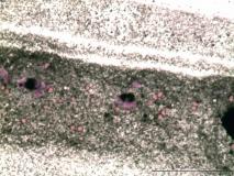 01 - Меланома слизистой оболочки полости носа у собаки породы шарпей