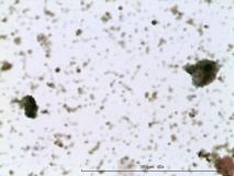 09 - Меланома слизистой оболочки полости носа у собаки породы шарпей