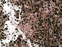 11 - Меланома слизистой оболочки полости носа у собаки породы шарпей