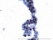 Мелкоклеточная лимфома у хорька. Жидкостная цитология. Рис. 5.