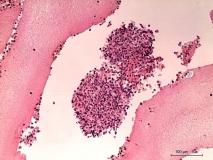 Мелкоклеточная лимфома у хорька. Гистология. Рис. 7.