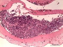 Мелкоклеточная лимфома у хорька. Гистология. Рис. 8.