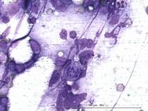 Т-клеточная лимфома у собаки породы бульмастиф. Рис. 1.