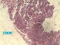 Т-клеточная лимфома у собаки породы бульмастиф. Рис. 8.