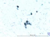 Т-клеточная лимфома у собаки породы бульмастиф. Рис. 16.