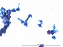 Меланома глаза у кошки. Жидкостная цитология. Рис 7