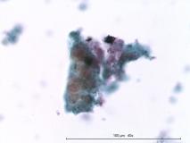 Папиллярная эндометриальная карцинома матки у кошки. Жидкостная цитология. Рис. 12