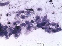 Папиллярная эндометриальная карцинома матки у кошки. Цитология. Рис. 15