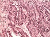 Папиллярная эндометриальная карцинома матки у кошки. Гистология. Рис. 24
