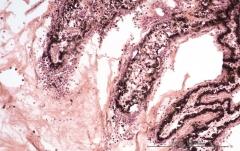 Подострый увеит травматического генеза у кота. Гистология. Рис. 8