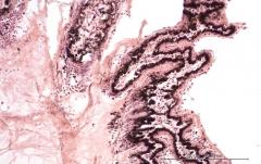Подострый увеит травматического генеза у кота. Гистология. Рис. 13