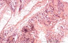 Подострый увеит травматического генеза у кота. Гистология. Рис. 14