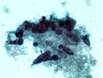 Пример гемангиомы. Рис. 8. Жидкостная цитология.