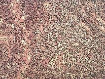 Пример гемангиосаркомы. Рис. 3. Гистология.