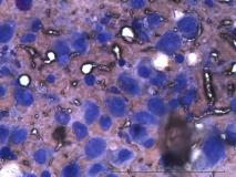 Пример гемангиосаркомы. Рис. 6. Цитология.