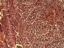 Пример гистиоцитарной саркомы. Рис. 2. Гистология.