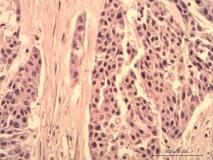 Пример лейомиомы. Рис. 3. Гистология.