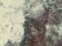 Пример синовиомы. Рис. 8. Жидкостная цитология.