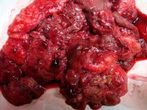 Пример злокачественной шванномы. Рис. 1. Внешний вид опухоли.