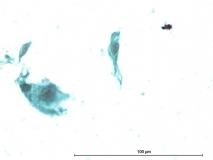 Пример злокачественной шванномы. Рис. 12. Жидкостная цитология.