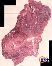 Клинический случай №3. Клеточный блок, окраска гематоксилин-эозином