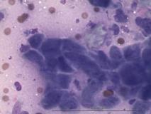 Акантоматозная амелобластома у собаки породы кокер-спаниель. Цитология. Рис. 5