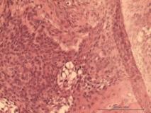 Акантоматозная амелобластома у собаки породы кокер-спаниель. Гистология. Рис. 10