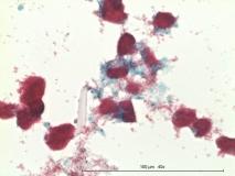 Атипичный микобактериоз у собаки породы цвергшнауцер. Жидкостная цитология. Окраска по Цилю-Нильсену. Рис. 15