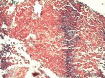 Атипичный микобактериоз у собаки породы цвергшнауцер. Клеточный блок (cell-block). Рис. 19