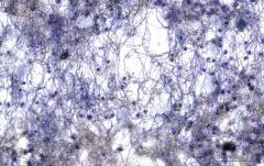 Бактериальный цистит у кошки. Цитология. Рис. 1