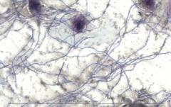 Бактериальный цистит у кошки. Цитология. Рис. 4