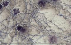 Бактериальный цистит у кошки. Цитология. Рис. 6
